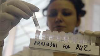 В Иркутской области, в отличие от других регионов России, ВИЧ чаще передается половым путем