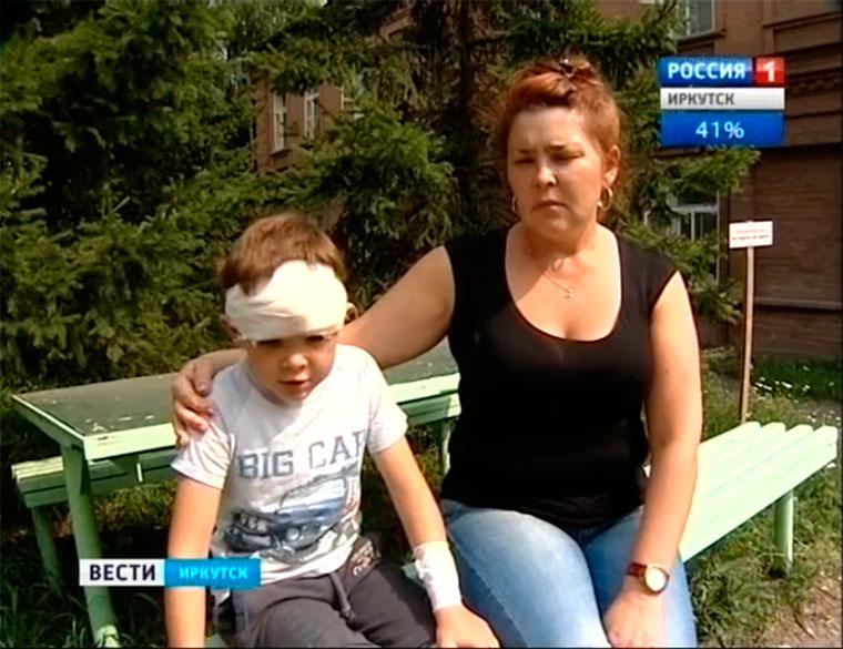 Под Иркутском собака напала на группу ребятишек
